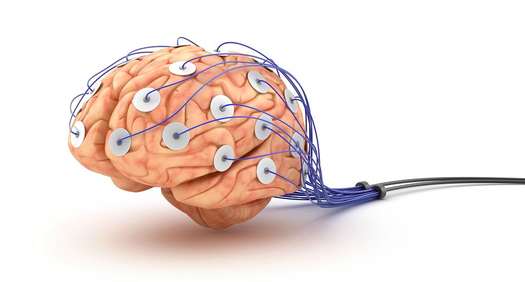 electroencefalografie