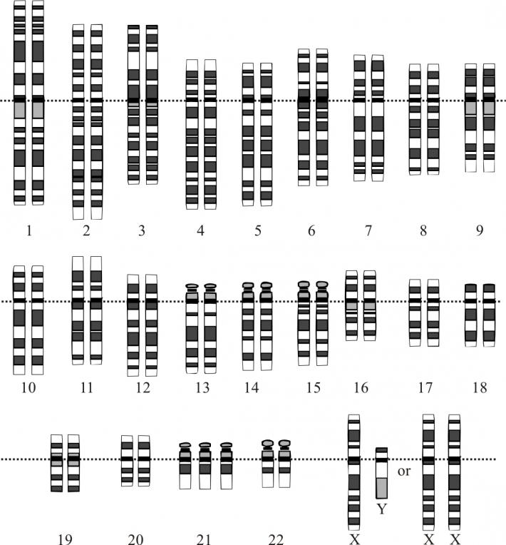 Cariograma Sindromului Down, Foto: en.wikipedia.org