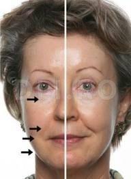Curentii galvanici si tratamentul facial