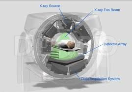 Tomografie computerizata multislice