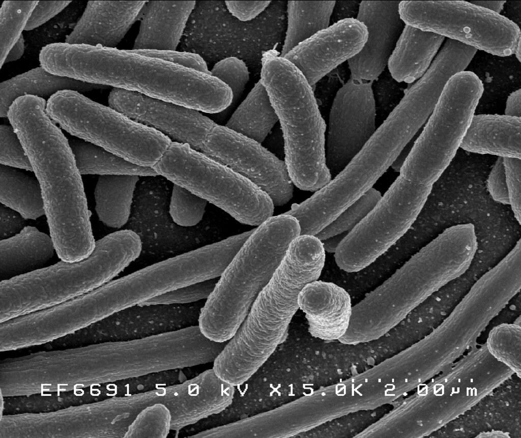 Bacteria cu e.coli