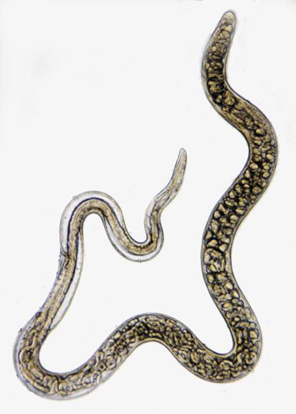 Vierme femela Trichinella spiralis, Foto: stanford.edu