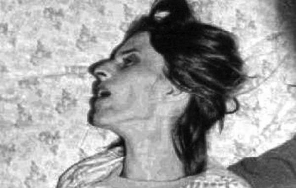 Cazul Klingenberg