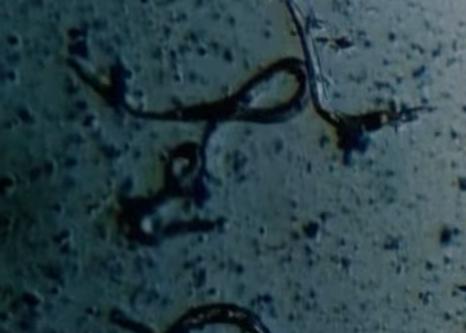 Infecția cu Wuchereria bancrofti