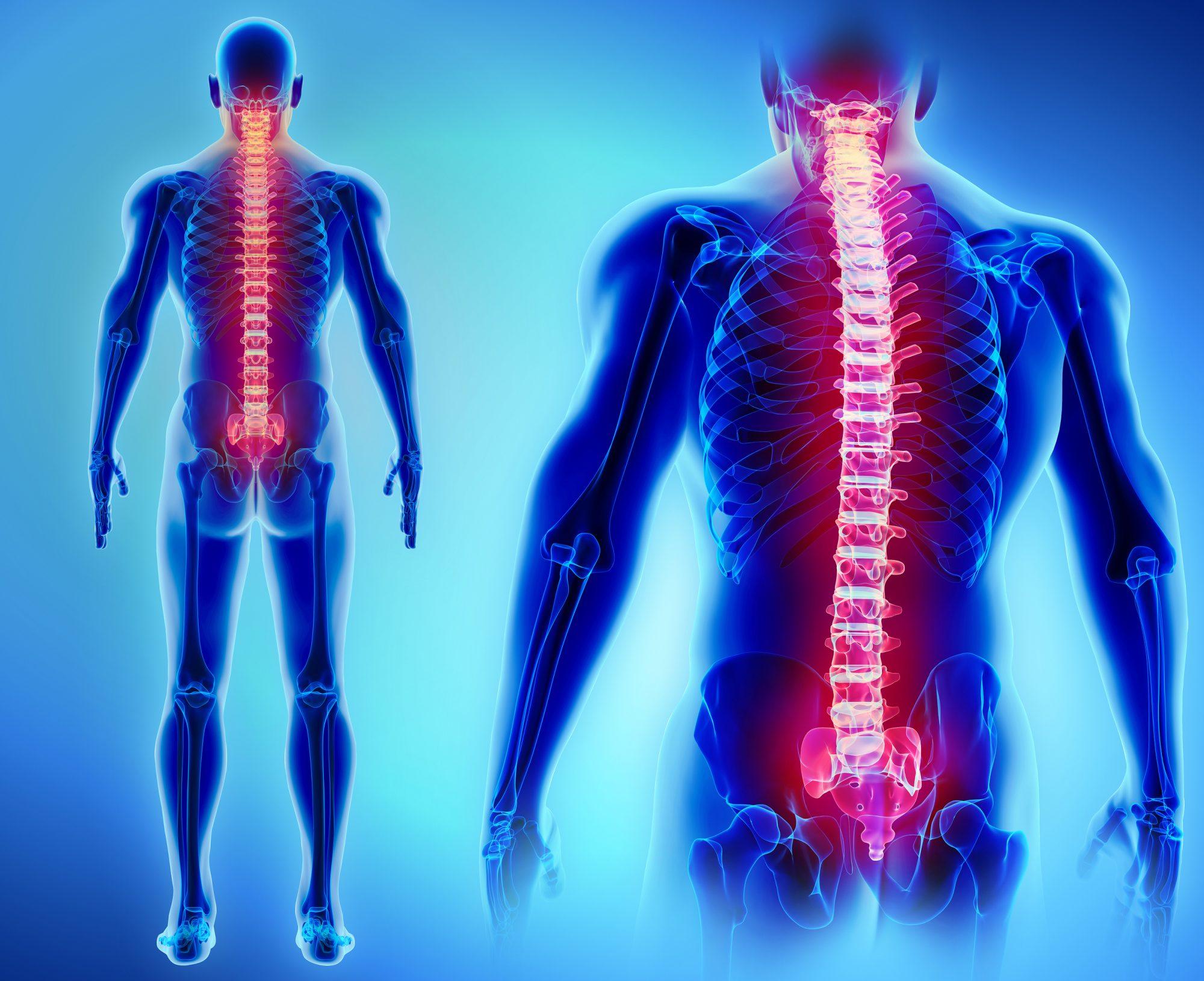Afectarea coloanei vertebrale la pacienti cu spondilita anchilozanta