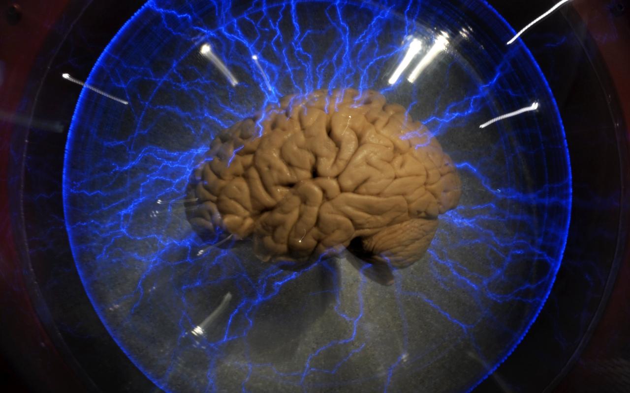 3000 de neuroni responsabili