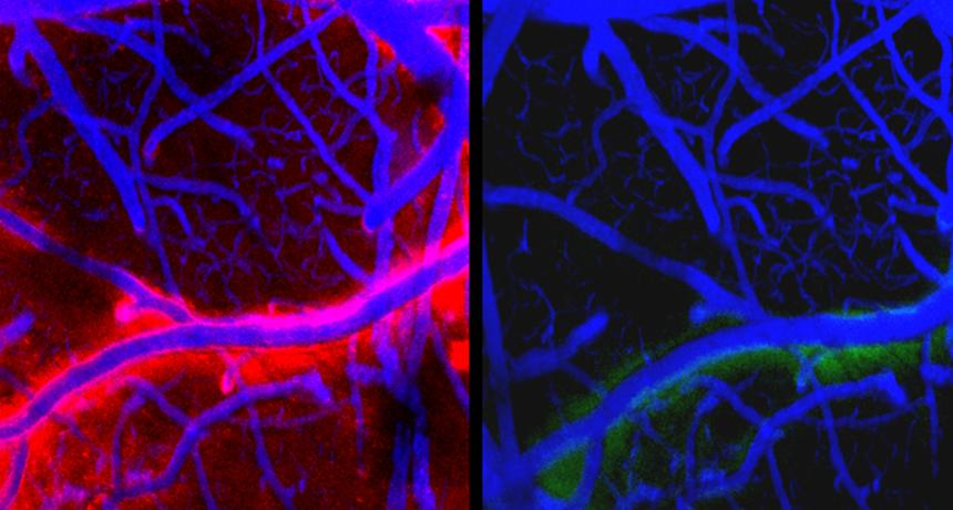 Lichidul cefalorahidian spala creierul, Sursa: Science News