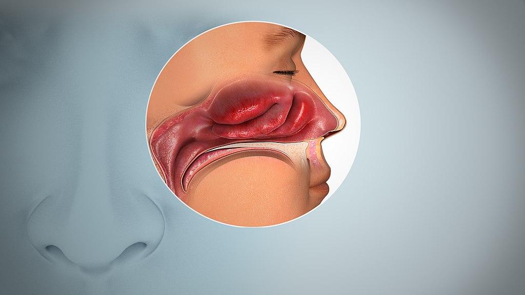 Pierderea mirosului, anosmia
